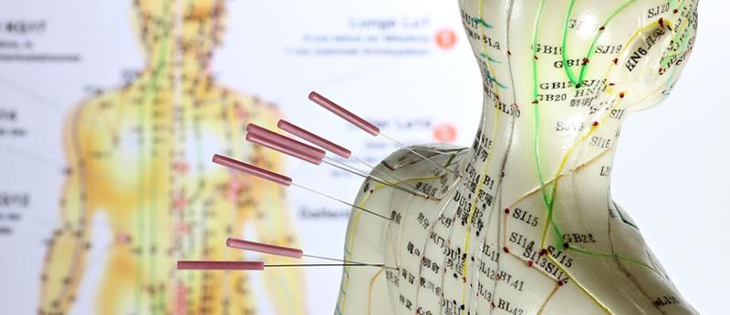 akupunktur_klein