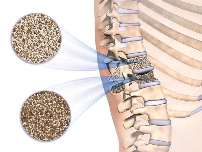 Osteoporosetherapie